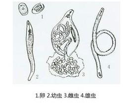 根线虫是什么样子